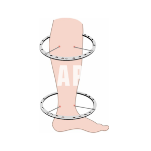 (18) Чехол на ногу (Голень)