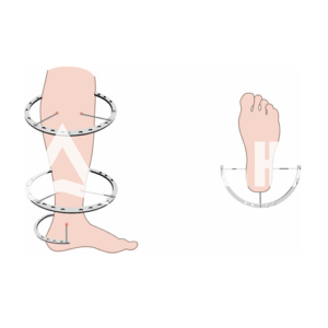 Чехол на ногу (Голень)