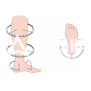 (21) Чехол на ногу (Голень)
