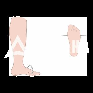 (24) Чехол на ногу (Стопа)